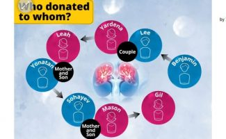 An extraordinary 8-way kidney surgery involving 4 donors and 4 recipients