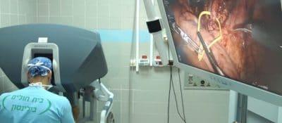 השתלת כליה באמצעות רובוט